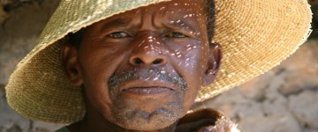 lesotho face 3